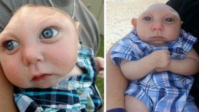 Doktorların Yaşamaz Dediği Bebek 1 Yaşında