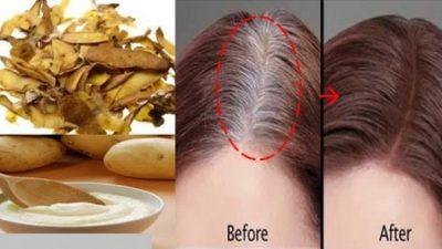 Beyaz Saçlar için Patates Kabuğu