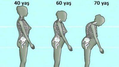 Kemik Erimesine Karşı Doğal Tedavi
