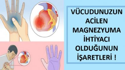 Vücudunuz Sizi Uyarıyor! Acilen Magnezyuma İhtiyacınız Olduğunun Belirtileri