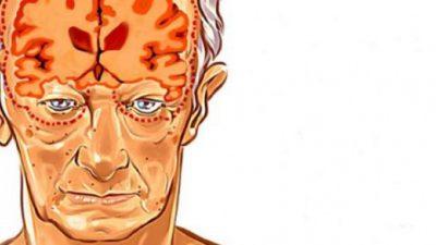 Alzheimer'ın Belirtileri 20 Yıl Önce Başlıyor! Bu Önerileri Dikkate Alın
