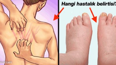 Vücudunuzun Size 10 Ciddi Uyarısı