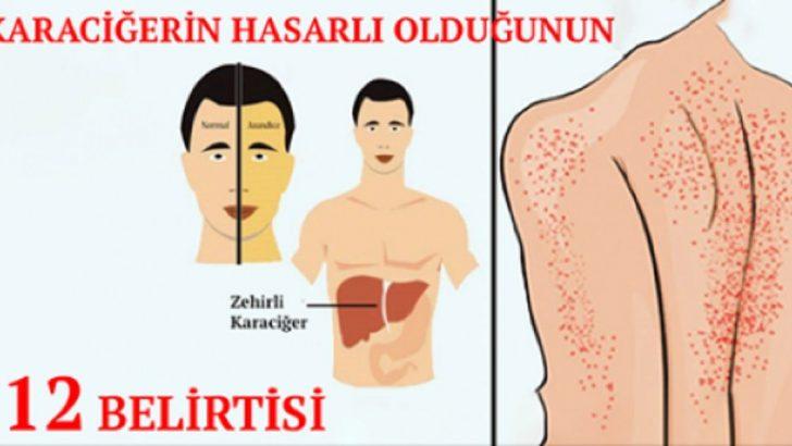 Karaciğerin Hasar Gördüğüne Dair Vücutta Ortaya Çıkan 12 Belirti