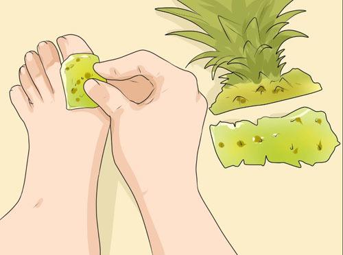 Ananas ile Nasır Tedavisi