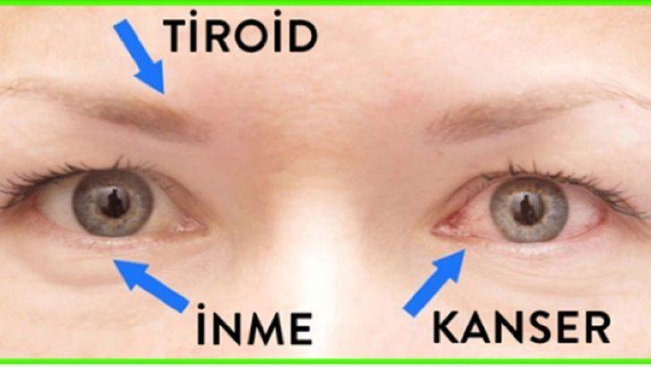 Gözlerinizin Sağlığınız Hakkında Söylediği 14 Belirti!