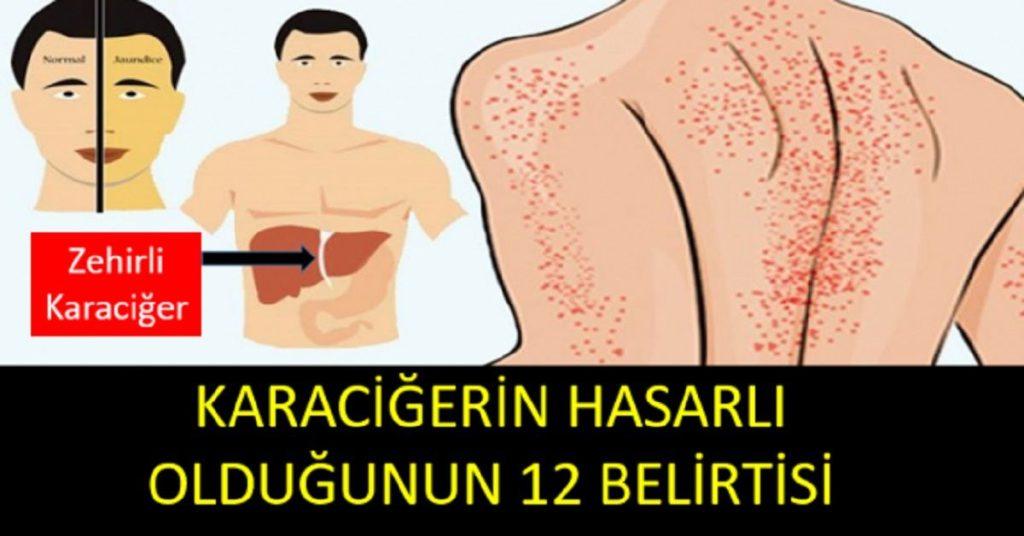 Karaciğerin Hasarlı Olduğuna Dair Vücudumuzda Ortaya Çıkan 12 Belirti