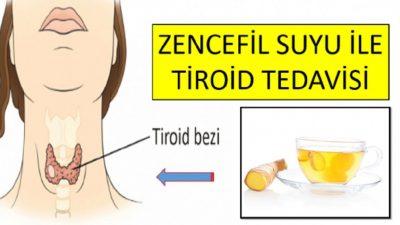 Tiroid Hastalığının Zencefil ile Çözümü
