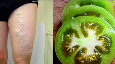 Yeşil Domates ile Varisli Damarlardan Kurtulmak