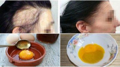 3 Basit Malzemeyle Dökülen Saçlarınızı Geri Kazanın!