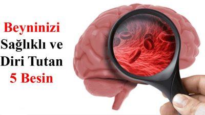Beyninizi Sağlıklı ve Diri Tutan 5 Besin