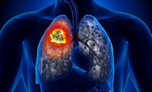 keçiboynuzu akciğer temizliği
