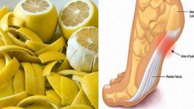 Limon Kabuğu ile Eklem Ağrılarından Kurtulun