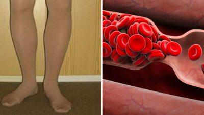 Kan Pıhtılaşmasının 8 Erken Uyarısını Vücudunuz Böyle Yapıyor