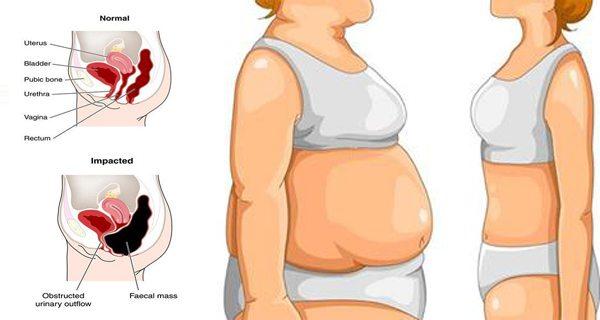 mide şişkinliği nedenleri