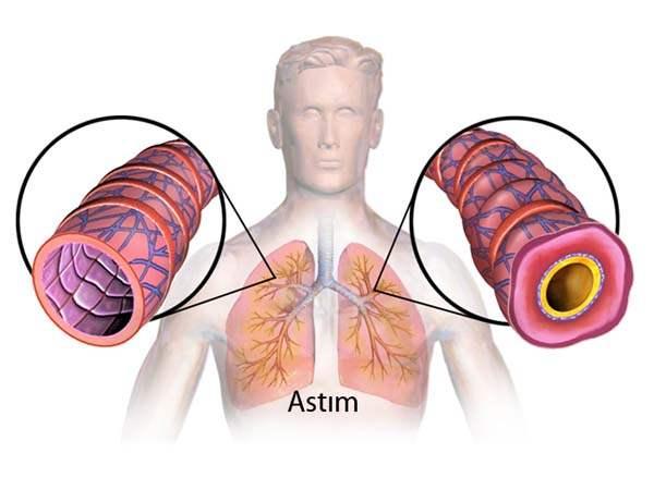 Astım türleri